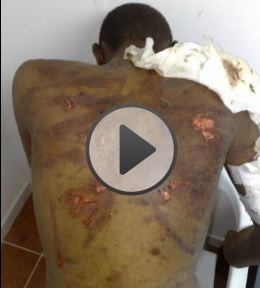 Tawergha Torture Victims Database